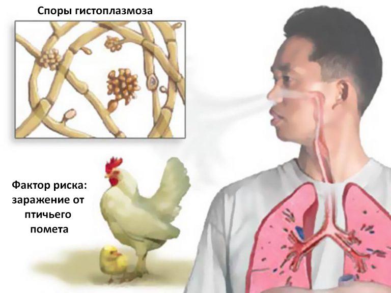 Гистоплазмоз