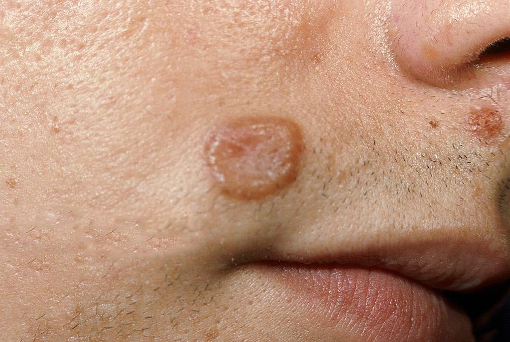 симптомы криптококкоза на коже