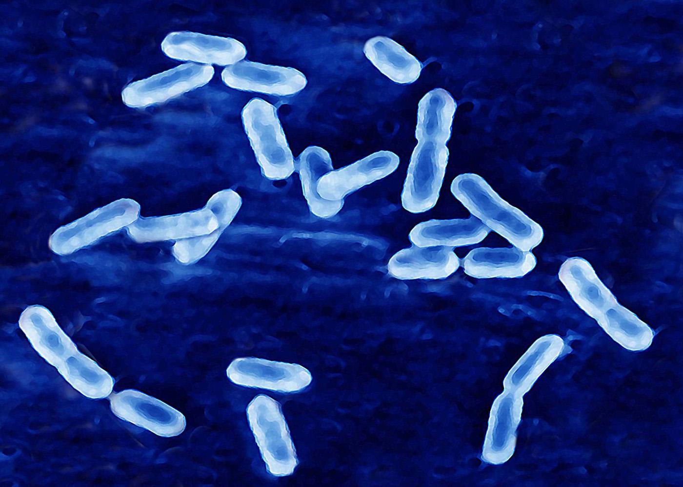 Листериоз. Листерии – бактерии